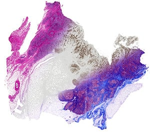 Breast tissue is computationally stained using data from infrared imaging without actually staining the tissue, enabling multiple stains on the same sample. From left, the image shows a Hematoxylin and Eosin stain (pink-blue), molecular staining for epithelial cells (brown color) and Masson's trichrome(blue, red at right).